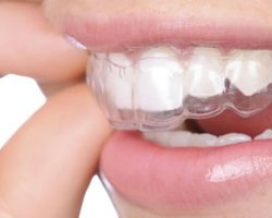 Invisalign Royal Oak, Mi Dentist | Duffield Dentistry