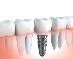 dental_implants_2 | Duffield Dentistry - Royal Oak, MI