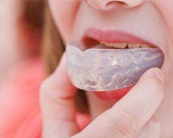 mouthguards_2 | Duffield Dentistry - Royal Oak, MI