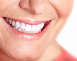 teeth_whitening_1 | Duffield Dentistry | Dentist Royal Oak, MI