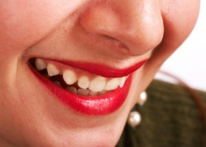Visit Duffield Dentistry for gum disease treatment