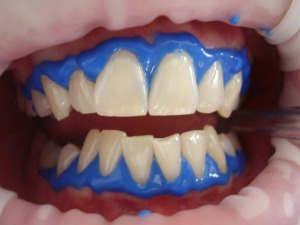 What Can I Do About Stained or Discolored Teeth?