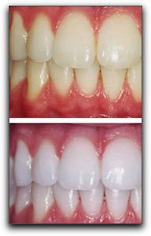 Professional Teeth Whitening Is Right Choice In Royal Oak