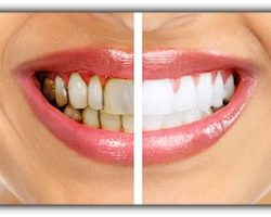 dentist-3-tooth-stains | Duffield Dentistry | Dentist Royal Oak, MI