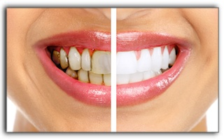 Teeth Whitening For 3 Types Of Tooth Stains In Royal Oak