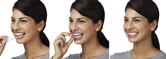 Invisalign clear braces is one of the best teeth straightening methods.