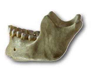 Los Angeles Jaw Bone Deterioration