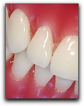 Periodontal Disease in California