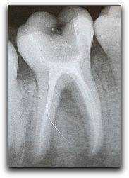 Root Canals in Fort Lee