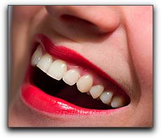 lp_teethwhitening | Duffield Dentistry | Dentist Royal Oak, MI
