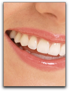 San Antonio low cost teeth whitening