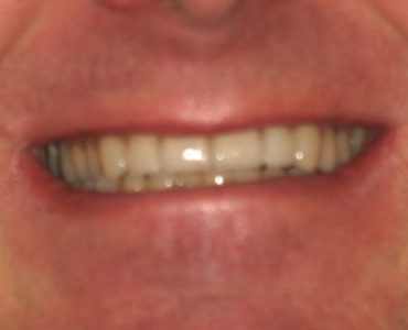 jeff_after - Smile Gallery | Duffield Dentistry - Royal Oak, MI