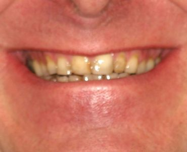 jeff_before - Smile Gallery | Duffield Dentistry - Royal Oak, MI