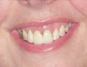 karrie_after - Smile Gallery | Duffield Dentistry - Royal Oak, MI