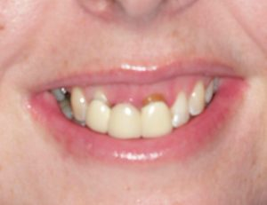 karrie_before - Smile Gallery | Duffield Dentistry - Royal Oak, MI